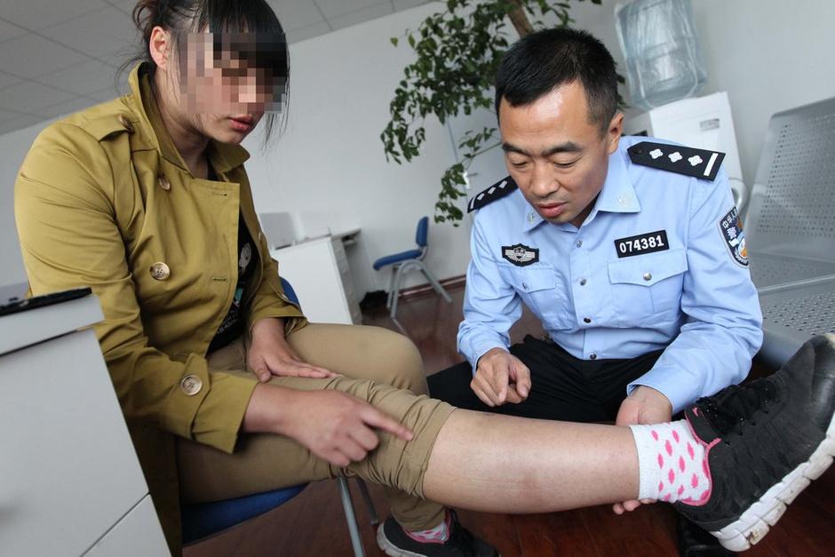 警察查看小红的伤情