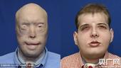 纽约大学完成世界最高难度换脸手术