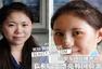 25岁女孩直播整容 变漂亮韩国脸蛋